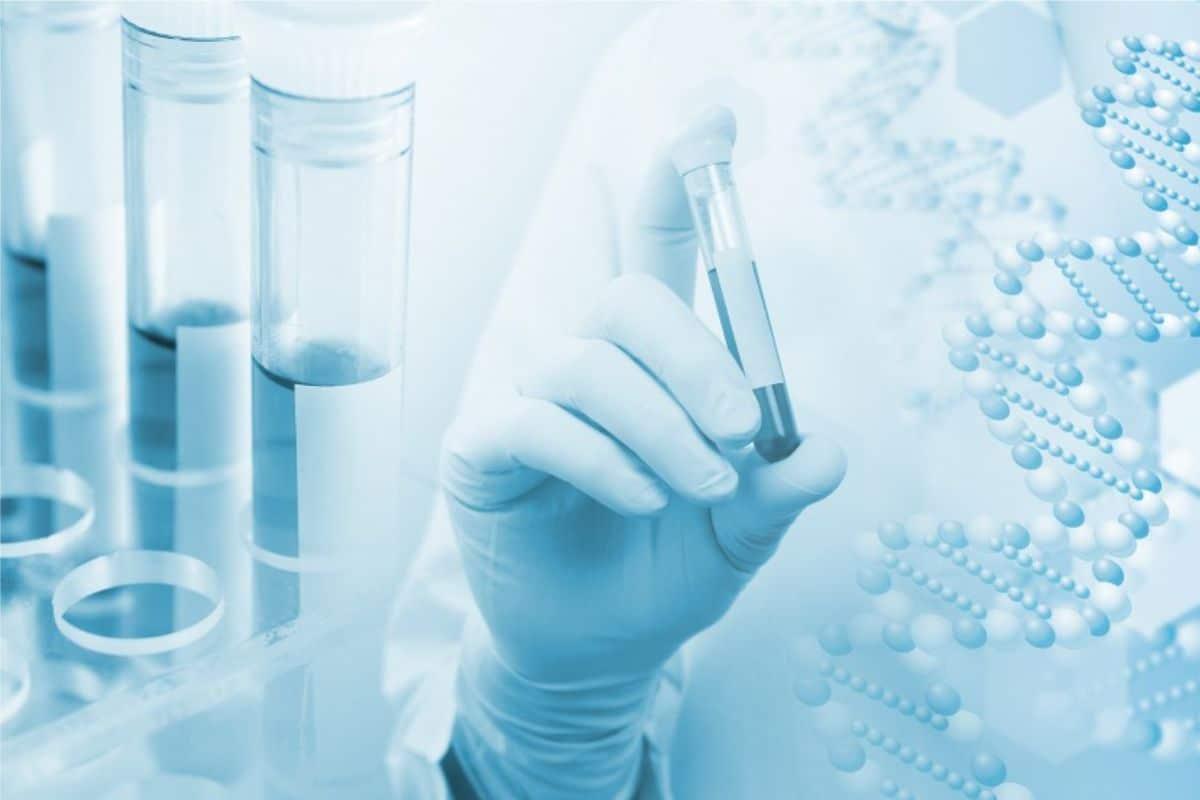 Xét nghiệm ADN bằng nước ối