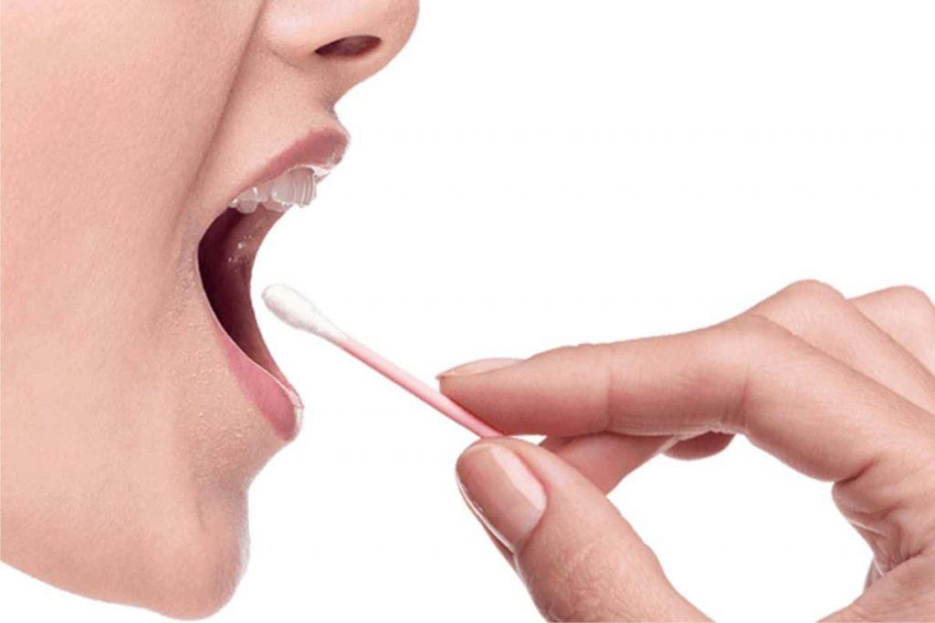 Lấy mẫu bằng tế bào niêm mạc miệng